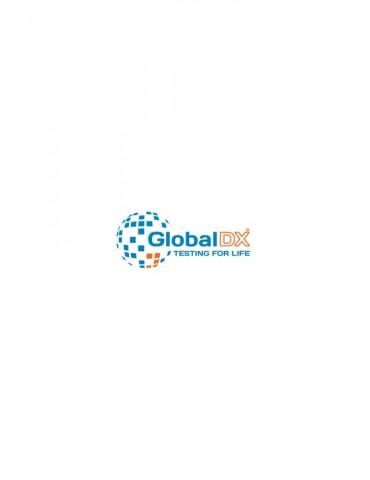 Τεστ τοξοπλάσματος Global DX